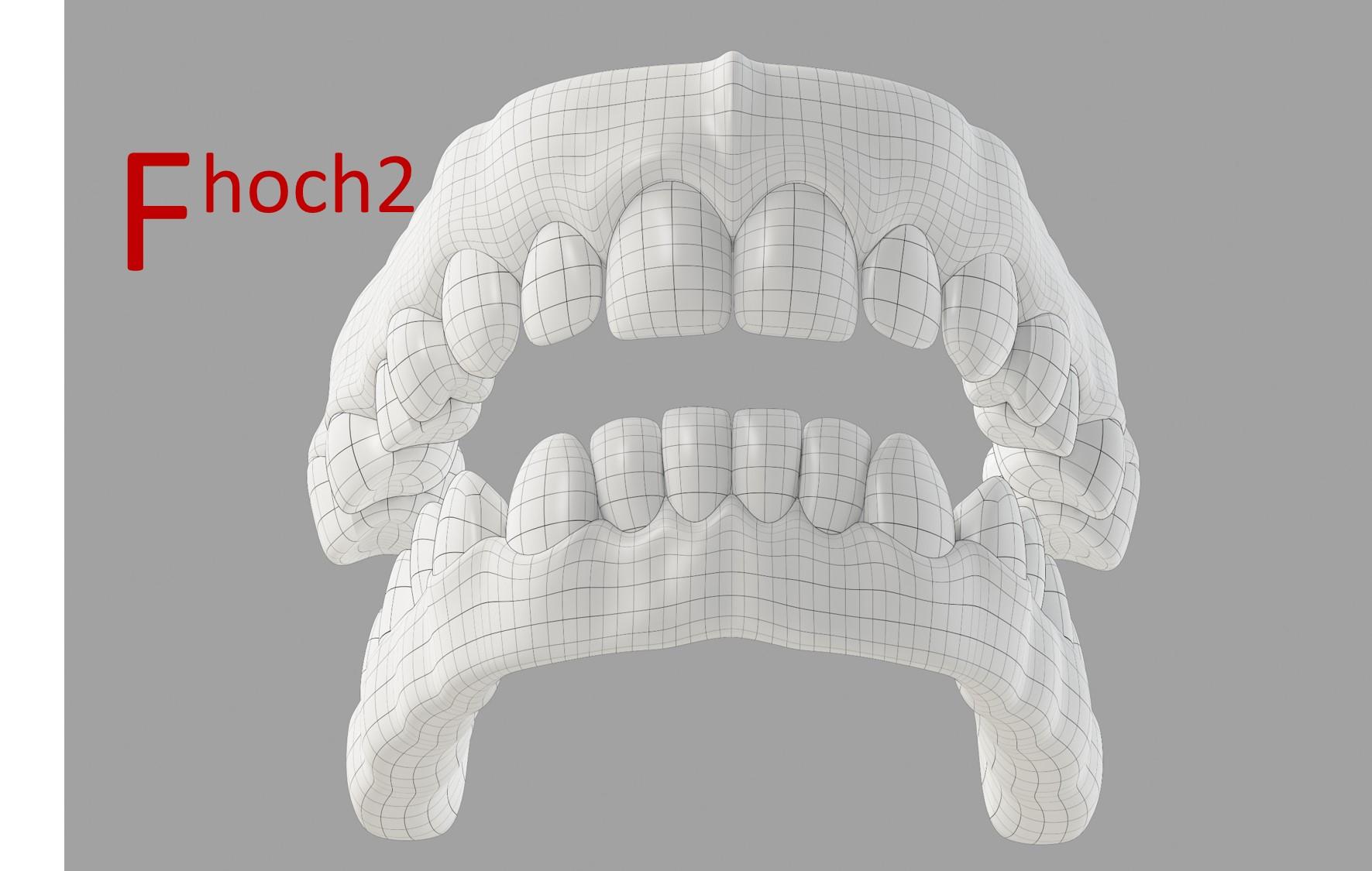 Zahnimplantate, Implantate, Zahnersatz