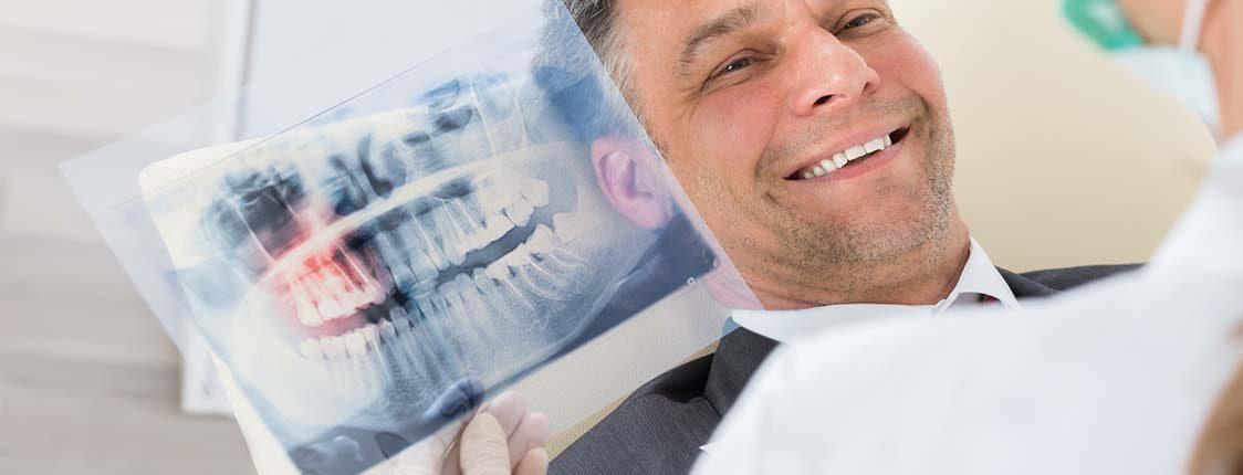 Zahnimplantate für Kassel